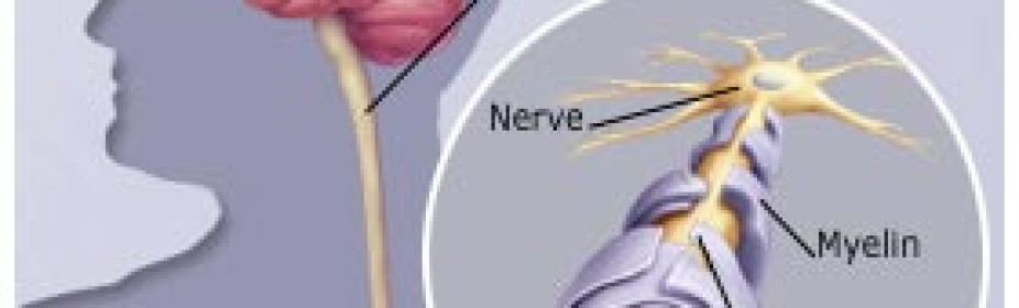 Migraines, Headaches, MS, Mulitple Schlerosis