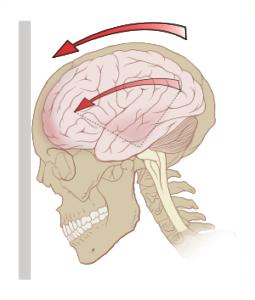 Concussion, Head Trauma, Headache, Head Pain, Post-Concussion Syndrome, Traumatic Brain Injury, Traumatic Brain Injuries