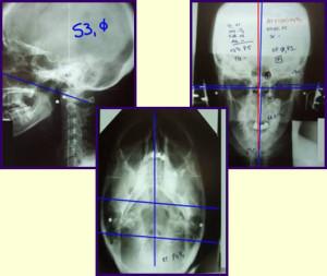 NUCCA X-ray-trio