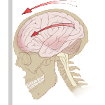 How Can You Find Natural Relief of Chronic Headaches after a Concussion?