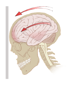 Chronic headaches following a concussion