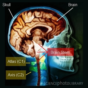 brain stem and the upper neck
