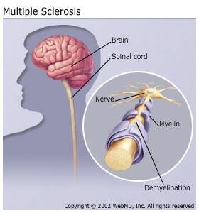 Migraines, Headaches, MS, Mulitple Sclerosis