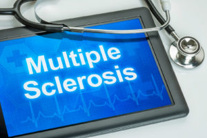 Multiple Sclerosis, MS, Extreme tiredness, Dizzy, Dizziness, Weak, Fog, Sclerosis, demyelinating, myelin