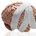 Concussions: How They Affect Your Life and What to Do for Them