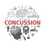 The Untold Effects of a Concussion on the Brain