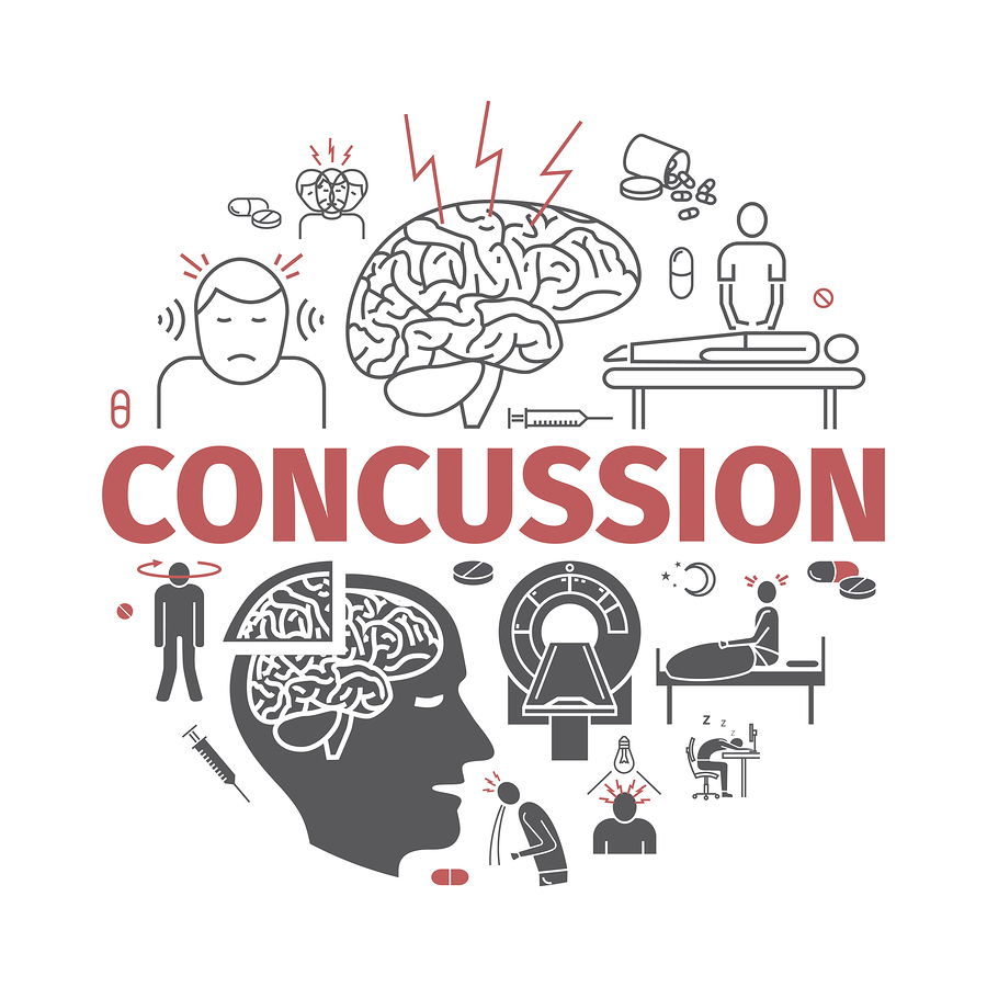 the-untold-effects-of-a-concussion-on-the-brain
