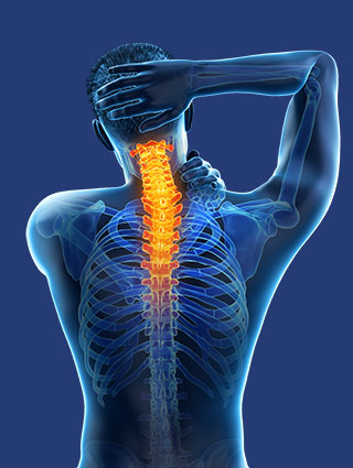 NUCCA chiropractor in Redwood City