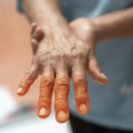 What Is the Root Cause of Numbness and Tingling?