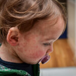 Allergies in Children and How to Help Them Cope